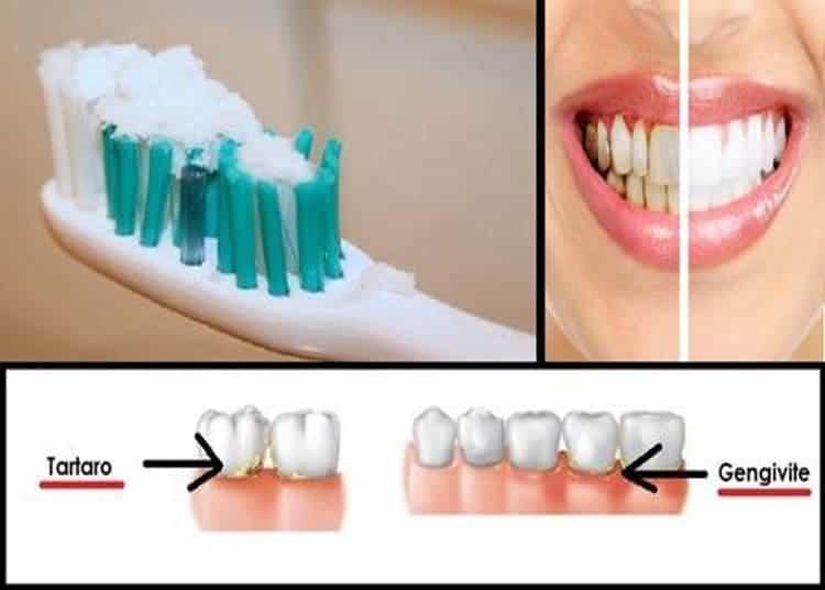 tartaro-e-placca-sui-denti