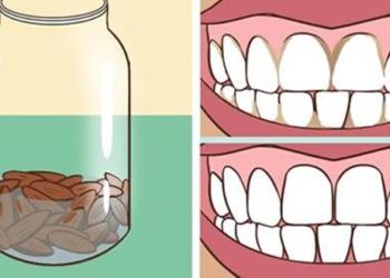 Metti ammollo delle mandorle prima di andare a dormire: ecco cosa possono fare per i denti