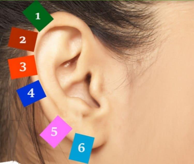 Auricoloterapia: metti una molletta nell'orecchio, il motivo? Combatte i dolori
