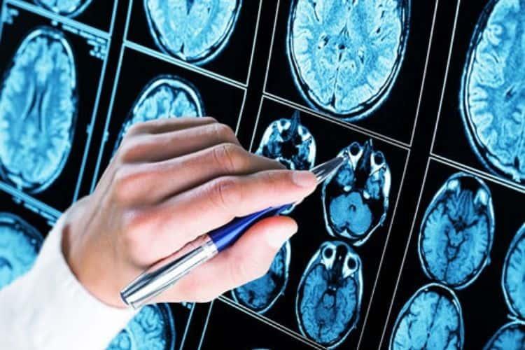 farmaco-contro-alzheimer